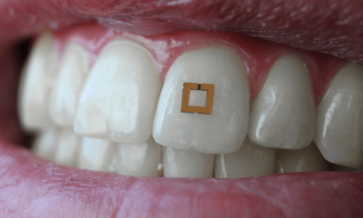 Food Sensor Chip on Teeth